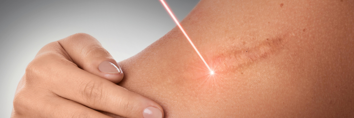 CO2 laser for minimal scar mole removal