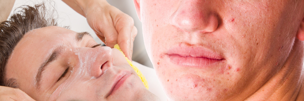 Exeter Devon Acne Treatment from consultant dermatologist skincare experts
