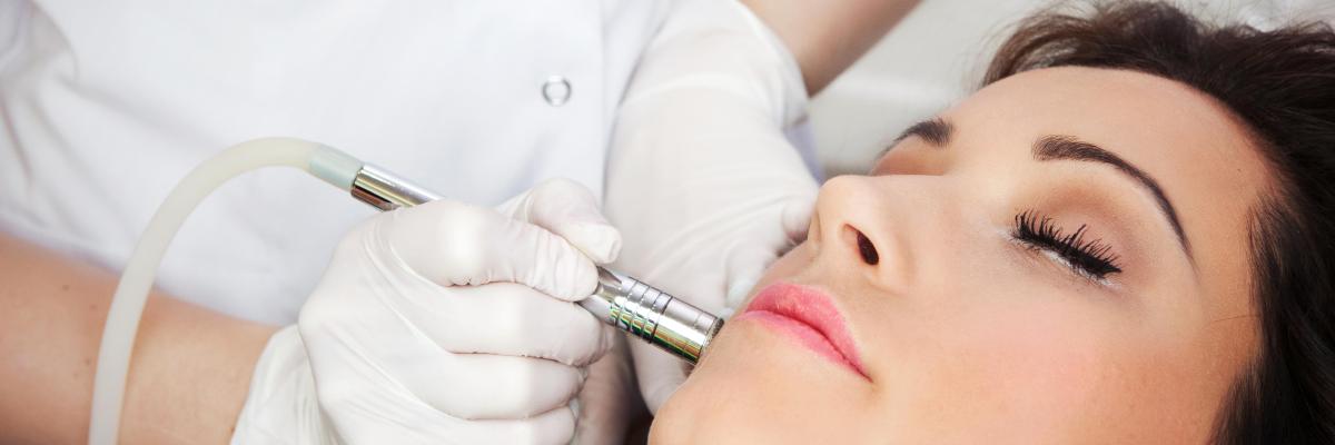 Exeter Laser Facial Thread Vein Removal in Devon