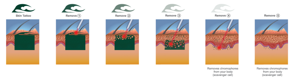 Exeter Laser Tattoo removal diagram removing tattoo steps