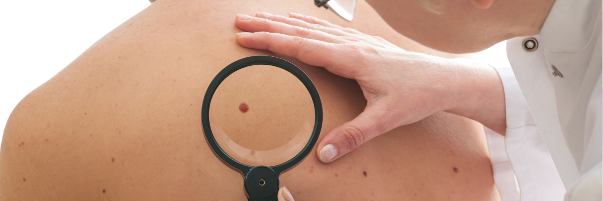 Exeter Mole Check Clinic in Devon by Medical Skincare Experts