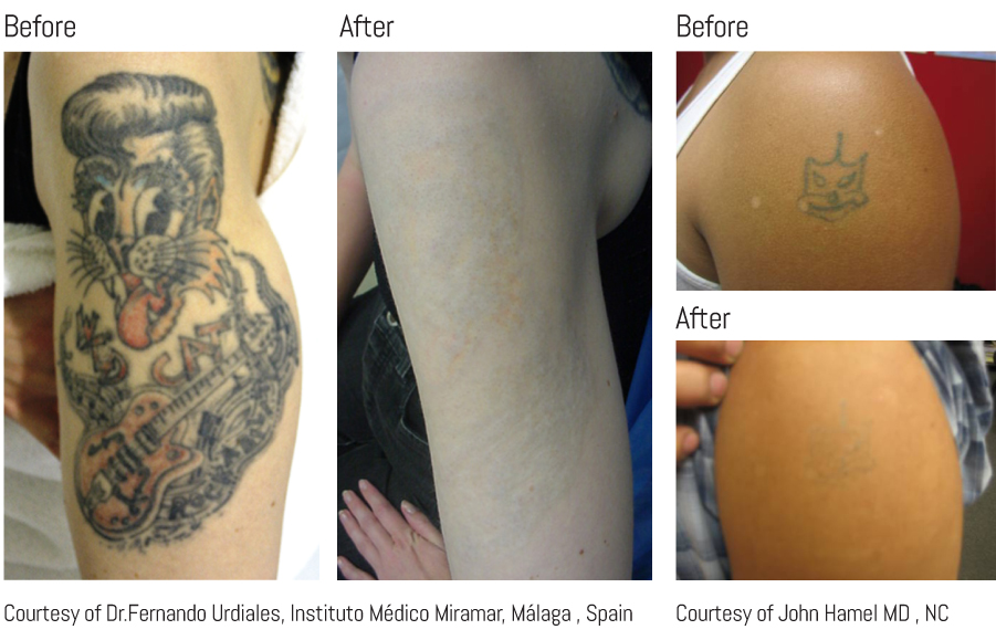 Laser Tattoo Removal treatment before & after results 1