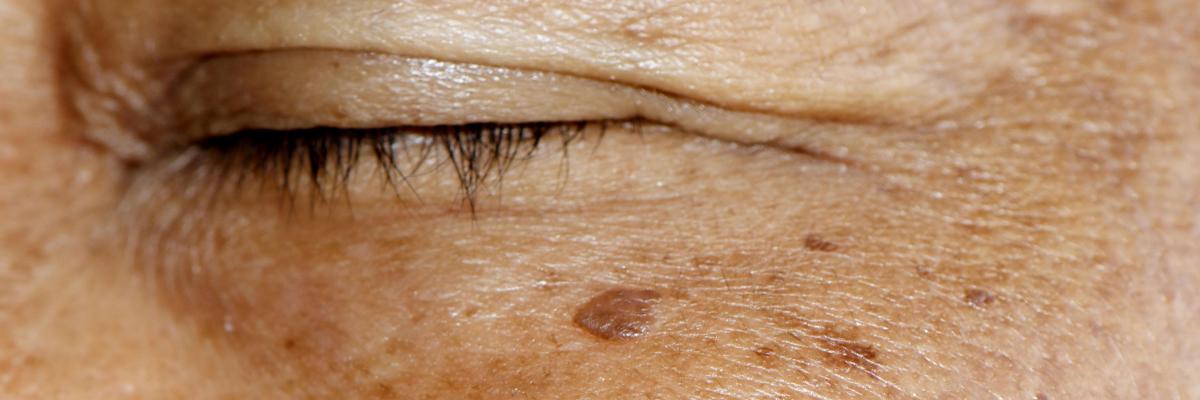 Melasma treatment Exeter, Torquay, Devon & Bristol & London by skin experts