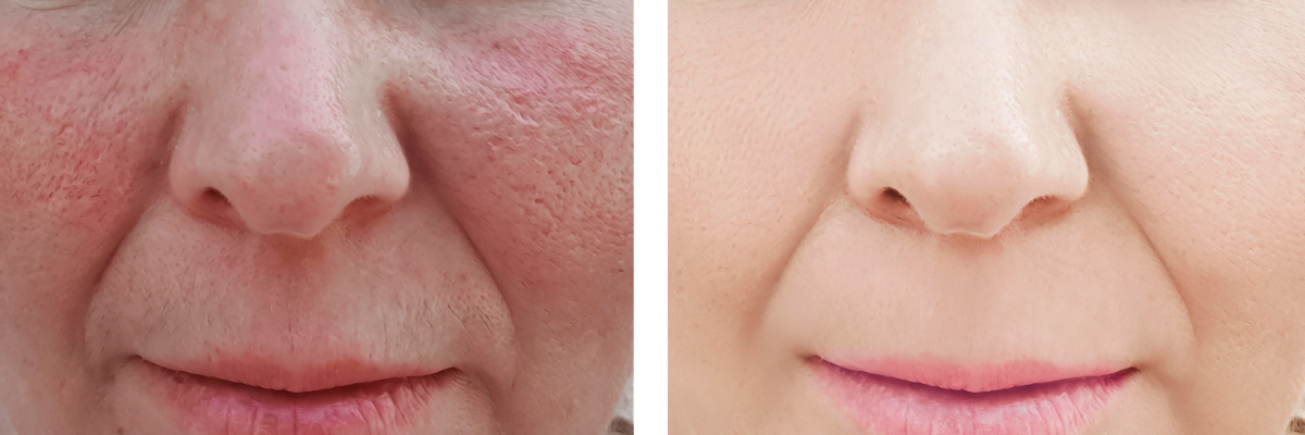 Rosecea treatment Exeter, Torquay, Devon & Bristol & London by skin experts