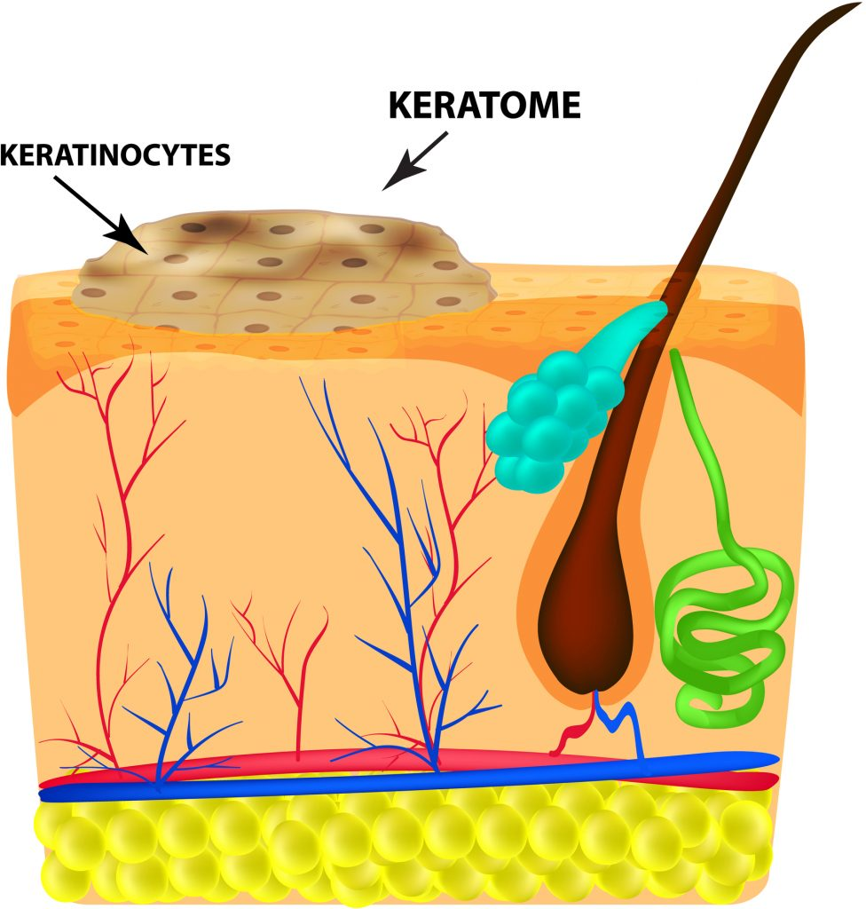 The structure of keratoma. Keratosis. The structure of moles on the skin. Infographics. Vector illustration on isolated background.
