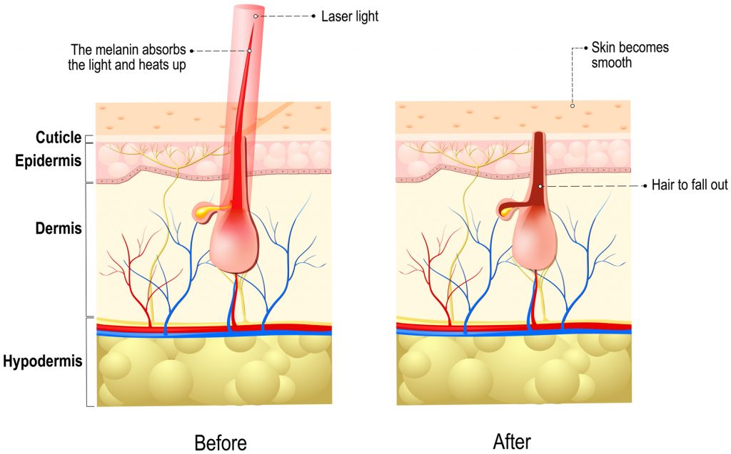 Laser hair removal in Exeter by Dermatologist in the South West, Exeter, Devon