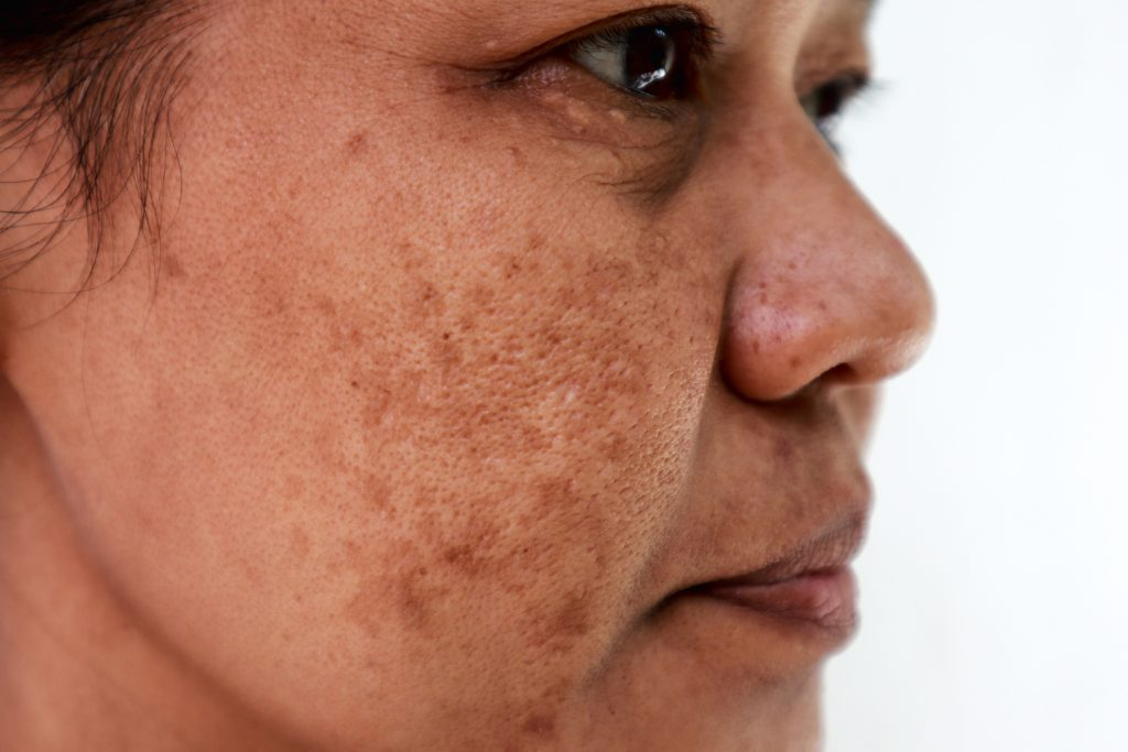 Melasma skin condition treatments in Exeter by South West Dermatology