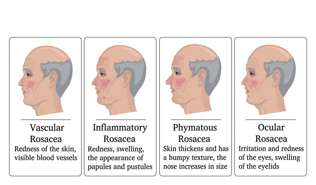 Rosacea skin condition treatments by South West Dermatology