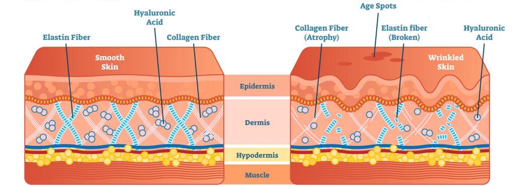 Skin Age Spots laser treatments by South West Dermatology