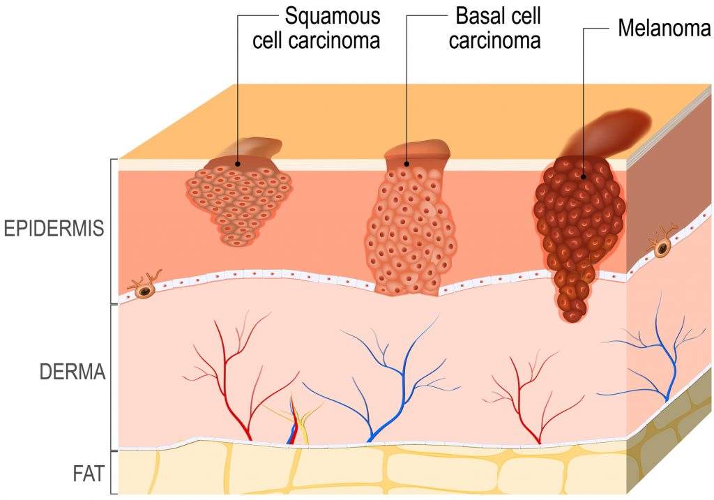 Skin Cancer treatments by South West Dermatology in Exeter