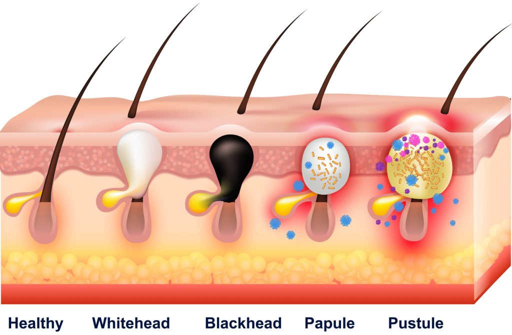 Types of Acne skin condition treatments by South West Dermatology