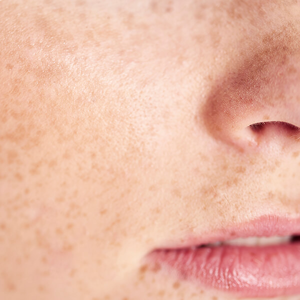 Skin Freckles Consultation with Dr Downs Consultant Dermatologist - South West Deramtology